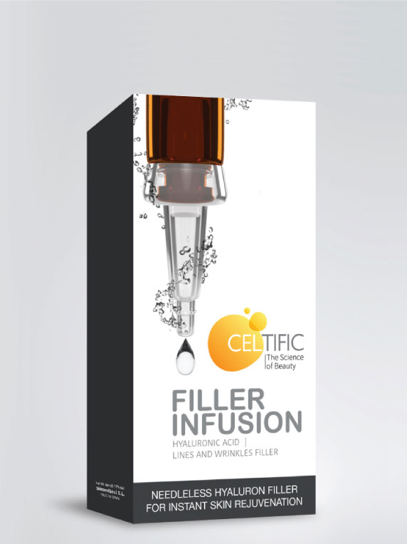 Filler Infusion
